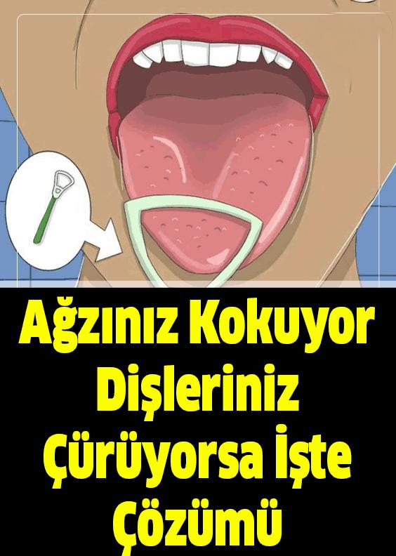 Ağzınız Kokuyor Dişleriniz Çürüyorsa Çözümü Basit