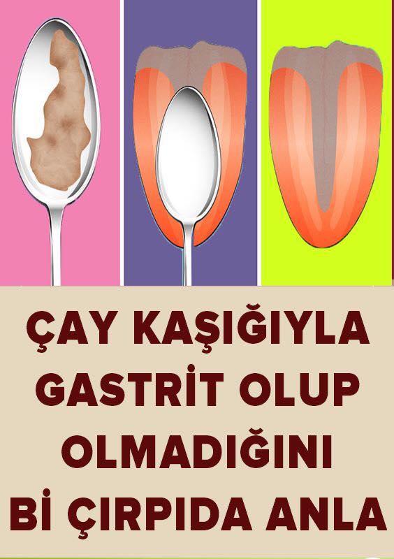 Gastrit Olup Olmadığınızı Bu Şekilde Anlayabilirsiniz