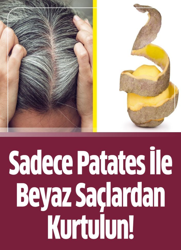 Beyaz Saça Patates Kabuğu ile Son! Denemeye Değer Zararı Yok