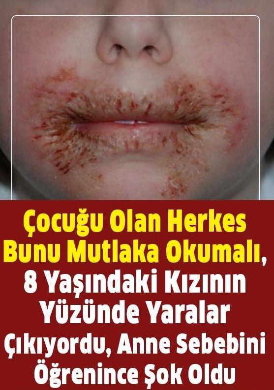 Kızının Yüzünde Yaralar Çıkmaya Başladı...Bütün Anne ve Babaları Uyarıyor