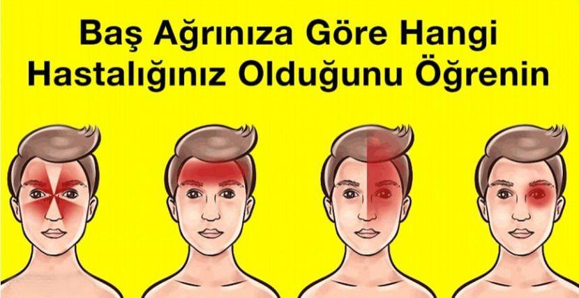 Baş Ağrınıza Göre Hangi Hastalığınız Olduğunu Öğrenebilirsiniz