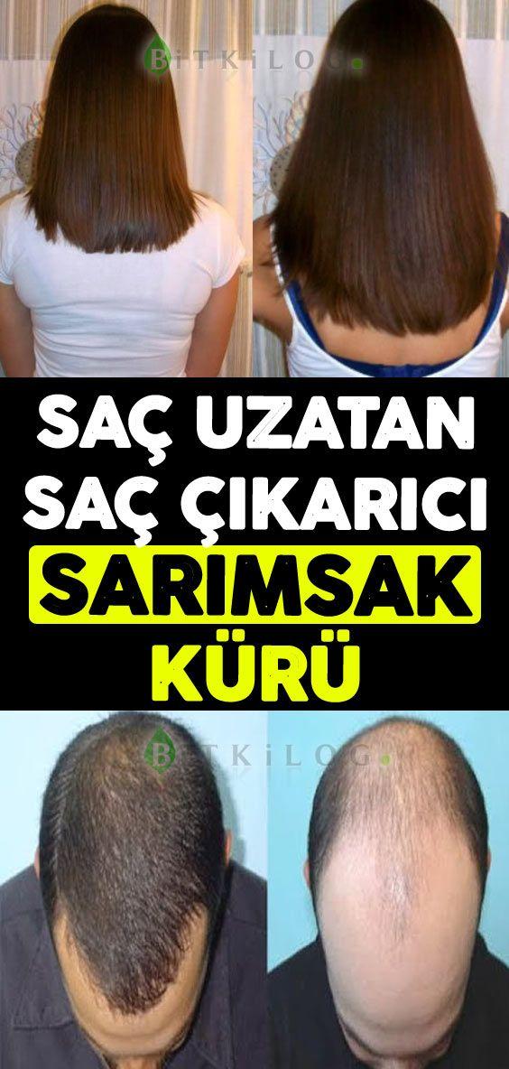 Saç Dökülmesini Önleyen ve Saç Uzatan Ev Yapımı Bitkisel Kür