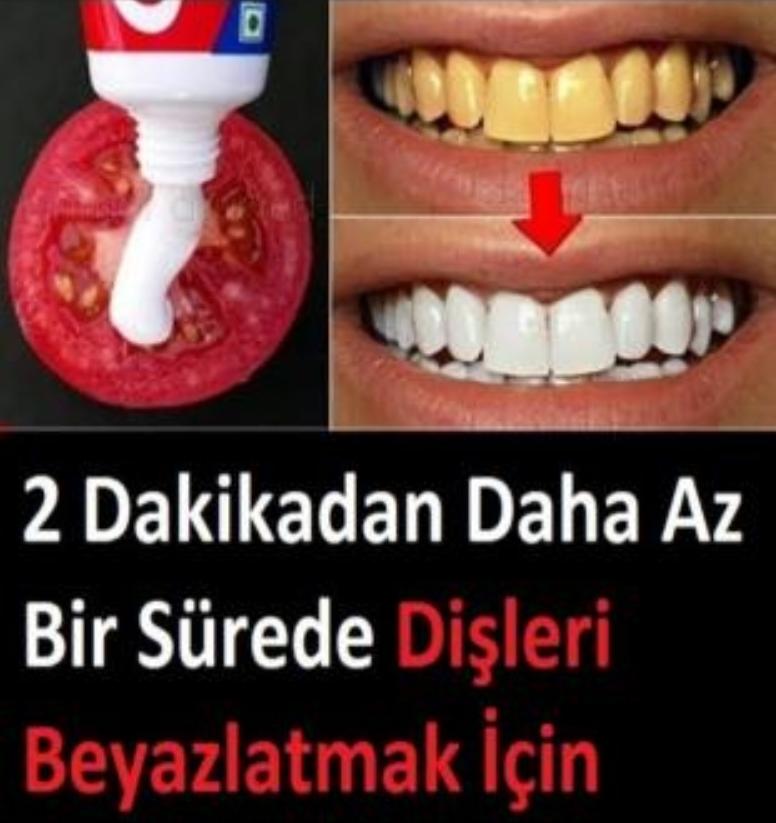 2 Dakikada Dişleriniz Bembeyaz